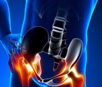 Douleur de la hanche