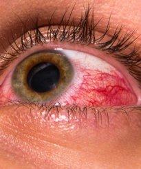 Oeil rouge