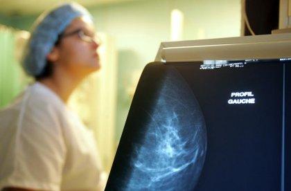 Cancer du sein: vers un meilleur dépistage des femmes de moins de 50 ans