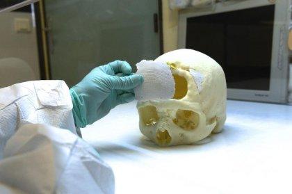 A Limoges, des prothèses crâniennes en céramique