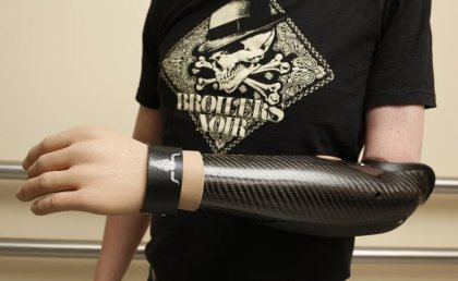 Une main bionique aussi forte qu'une main greffée
