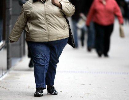 L'obésité peut abréger la vie de huit ans