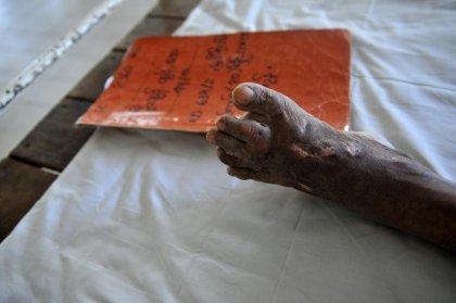 La lèpre, une maladie dont on ne voit toujours pas la fin
