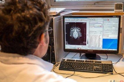 Des scientifiques contestent un ambitieux projet sur le cerveau financé par l'UE