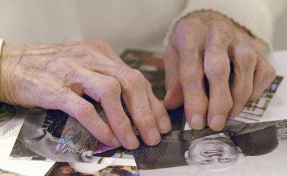 Un diagnostic précoce et simplifié de la maladie d'Alzheimer