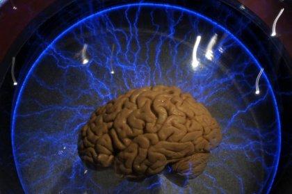 Grande-Bretagne: un ver dans le cerveau à l'origine des maux de tête d'un patient