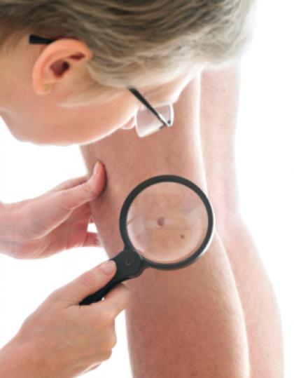 Dépistage du cancer de la peau
