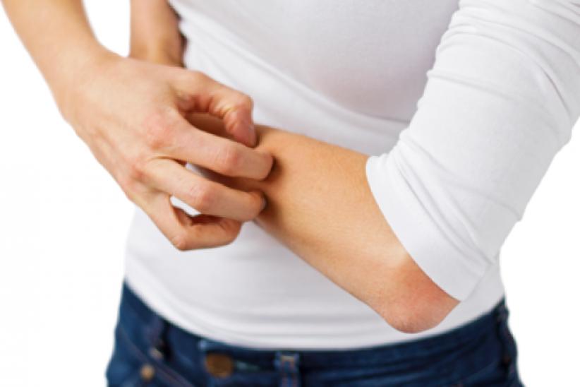 Les démangeaisons touchent surtout les bras, les jambes, la tête et le dos, et le plus souvent en fin de journée.